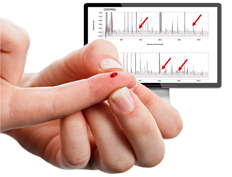 Pinprick Blood Test + CoulArray™ Technology